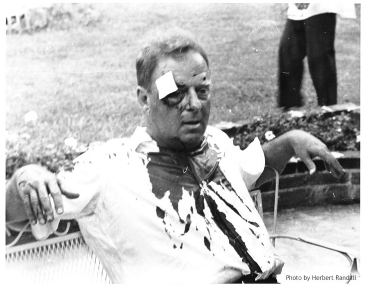 Rabbi Lelyveld after being beaten during voter registration in Hattiesburg, MS, 1964. © Herbert Randall
